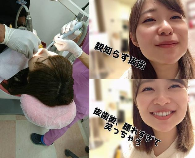 AKB48指原莉乃连拔四颗智齿 网友惊呼脸肿认不出