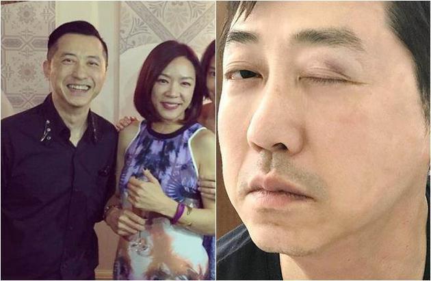 庾澄庆今自曝被女儿撞伤惨照。
