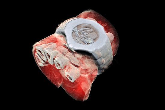大型强子对撞机衍生科技:X光片也能是三维彩色的