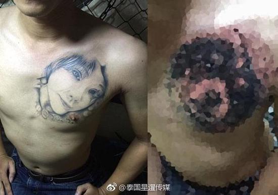泰国男子和女友分手后 将胸口女友头像纹身改成狗