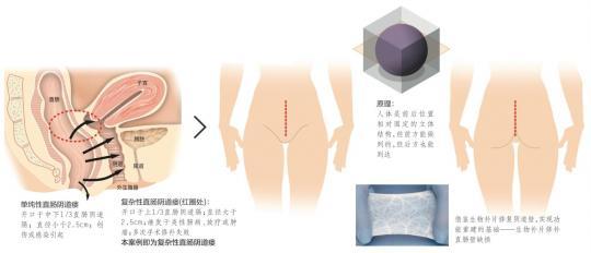 世界首例!中国医生用猪小肠生物补片修补人肠