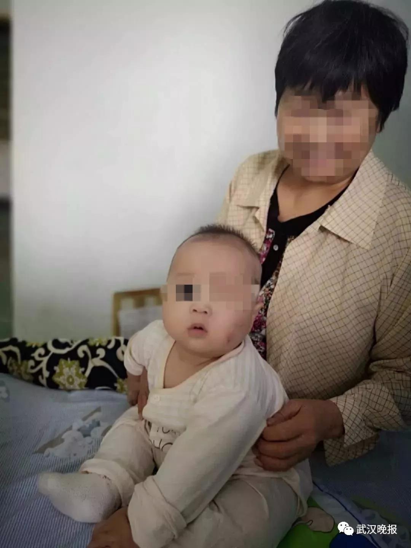 武汉半岁男婴被恶犬叼走咬穿颅骨 抢救近60天出院