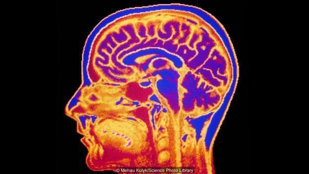 意识的产生 人类大脑可能是台量子计算机! -  - 上海证券会馆