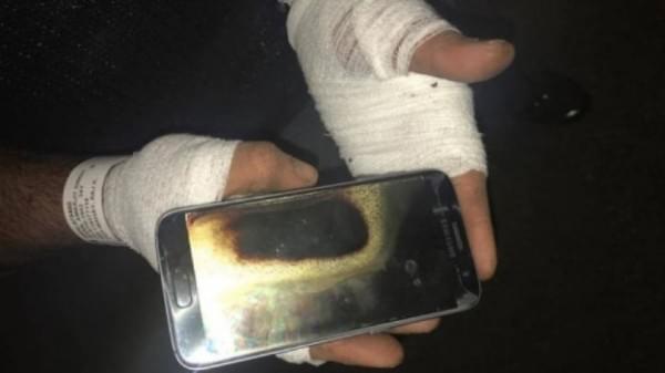 继Note 7之后 一部Galaxy S7在加拿大男子手中爆炸的照片 - 1