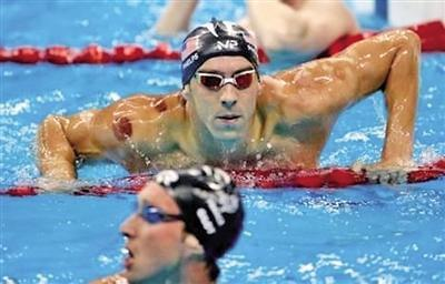 里约奥运会 中式拔罐火了