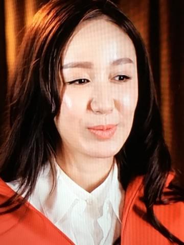 否认整容和打针 但娄艺潇的脸真的好奇怪