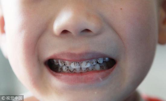 你的牙齿,是不可能刷白的