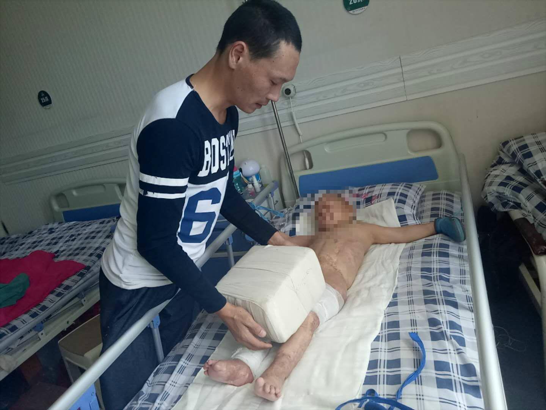 4岁男孩烧伤父亲用30斤砖块压腿 每天只睡3小时