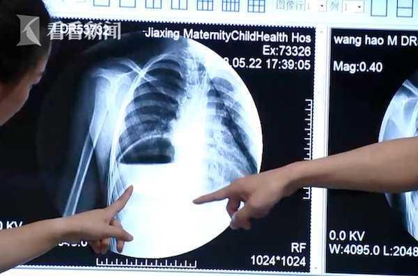 胃跑进胸腔!7岁男孩小鸟胃体重仅30斤 频繁呕吐