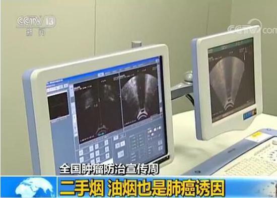 中国平均每分钟7人确诊患癌症,其中肺癌排首位