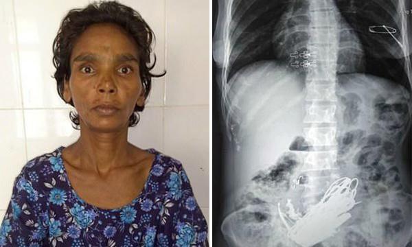 印度女子腹痛 医生竟从胃里取出3公斤金属