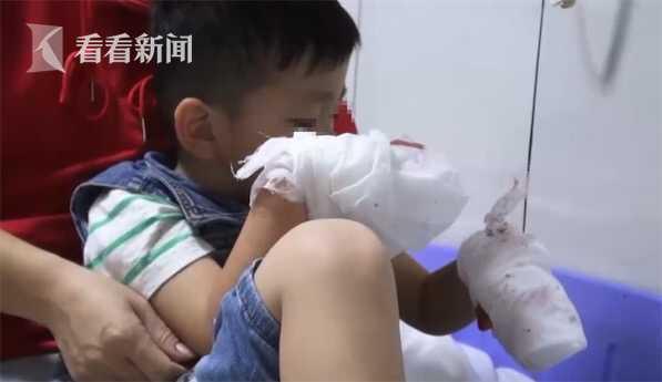 3岁男童在蛋糕店内玩耍 双手6根手指被切断