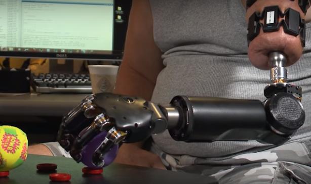 他的机械臂可由思维控制:半机械人的生活好过吗?