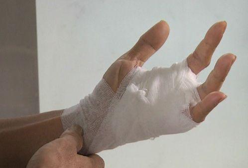 男子被鱼刺扎伤要截肢 当心这些小伤口惹出大麻烦