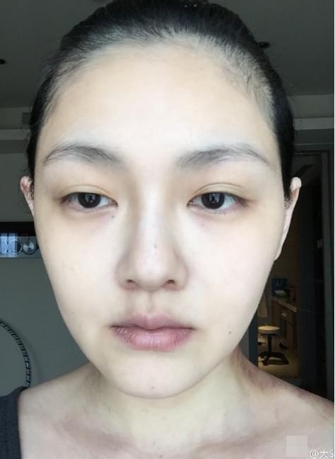 大s罕见晒面部纯素颜特写 可是脖子上怎么了?