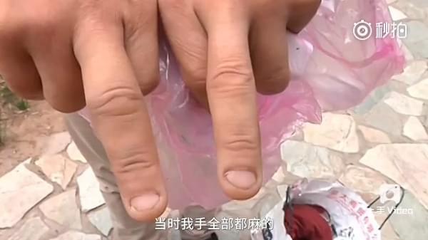 内地首炸 新买iPhone 7疑爆炸成两半 用户面部破相的照片 - 2