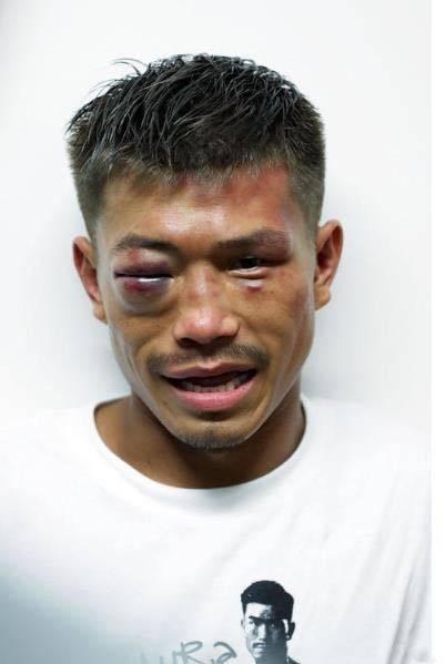 木村翔的人生逆袭结束了 不屈的拳王令人动容