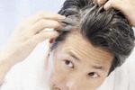 白发让人烦恼 科学家找到头发变白基因