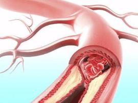 血液垃圾最怕这5种碱性食物 常吃血管干净