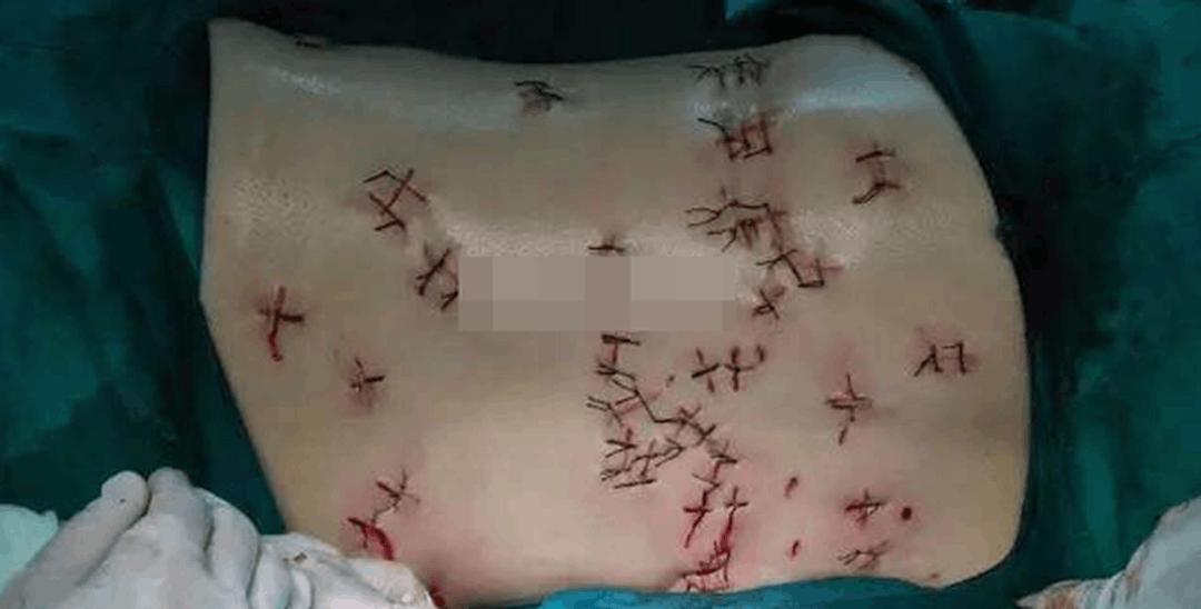 女子拒绝已婚男表白 遭报复被刺66刀