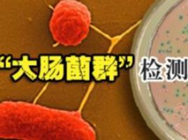 运城市食药监局:5家饭店餐具检出大肠菌群