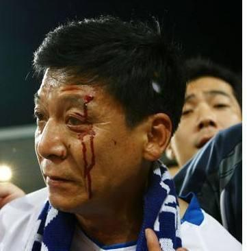 那一年中超,天津人被砸出了血,北京人被打上了树
