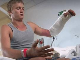 澳洲男子为取悦女人下河搏击鳄鱼:被咬断两根骨