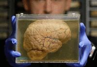 """用皮肤培养一个""""迷你大脑"""",你就能获得永生?"""