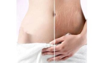 妊娠纹是所有怀孕女性无法避免的吗?