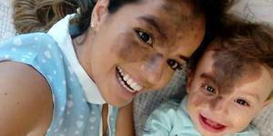 妈妈将脸涂黑 复制儿子脸上胎记