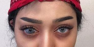 瞳孔胎记被指是病 网红强烈回击