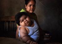 墨西哥人为啥胖子那么多,有父母用可乐给孩子喂