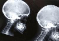 世界神经外科联合会回应首例头移植术:毫无意义