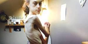 英美女与厌食症做斗争