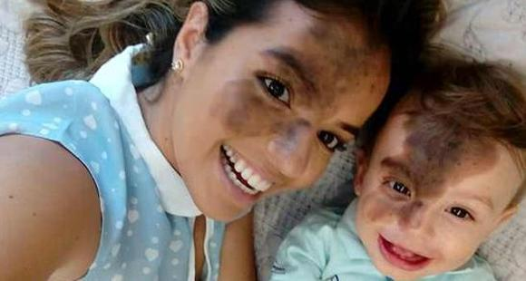 美女妈妈将脸涂黑 复制儿子脸上胎记