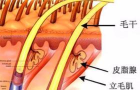 脱毛手术的原理是什么?
