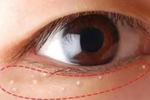 脸上的脂肪粒 是因为护肤品堵塞毛孔?