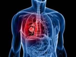 中外PK!肺癌治疗技术各有哪些优劣势?