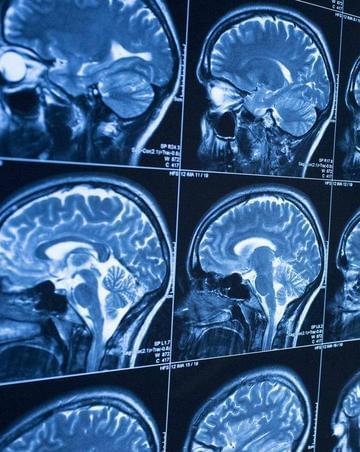 AI新技能 可以提前10年发现老年痴呆症