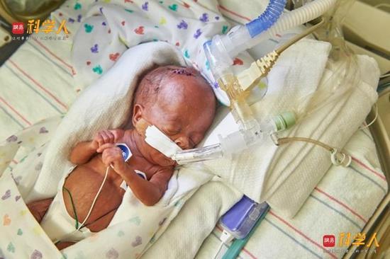 费城科学家的发明 能否拯救中国每年180万早产儿