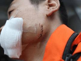 湖南快递员疑因打扰收件人休息被砸伤 面部缝十针
