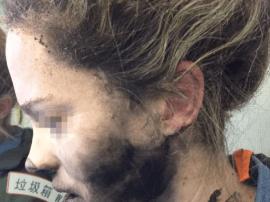 Beats耳机爆炸致用户被烧伤后续:苹果拒绝赔偿