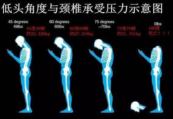 低头玩手机=脖子挂50斤重物?看手机的你要注意了的照片 - 1