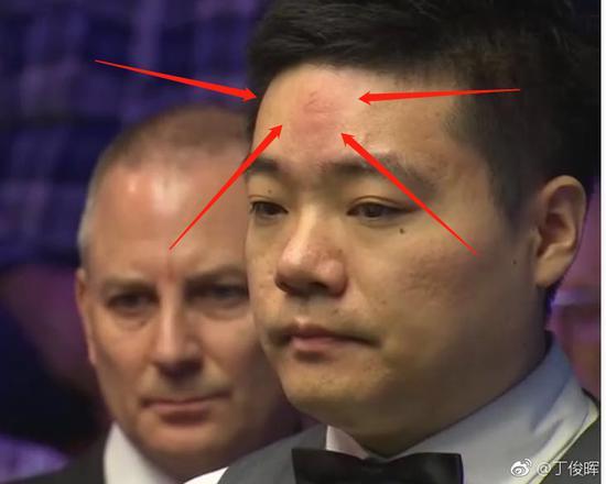 哈哈!丁俊晖晋级心情大好 头撞球台戏称:天眼已开