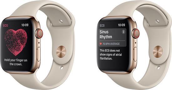 Apple Watch4心电图功能仅限美国 还要等到年底