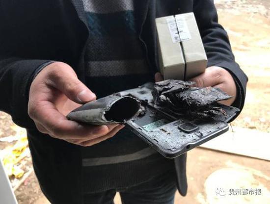 三星手机又爆炸 5岁女童脸部双手被烧伤的照片 - 2
