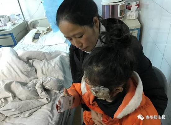 三星手机又爆炸 5岁女童脸部双手被烧伤的照片 - 1